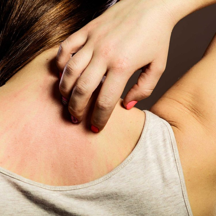 Foods to Avoid with Psoriasis & Eczema